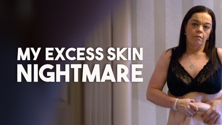 My Excess Skin Nightmare